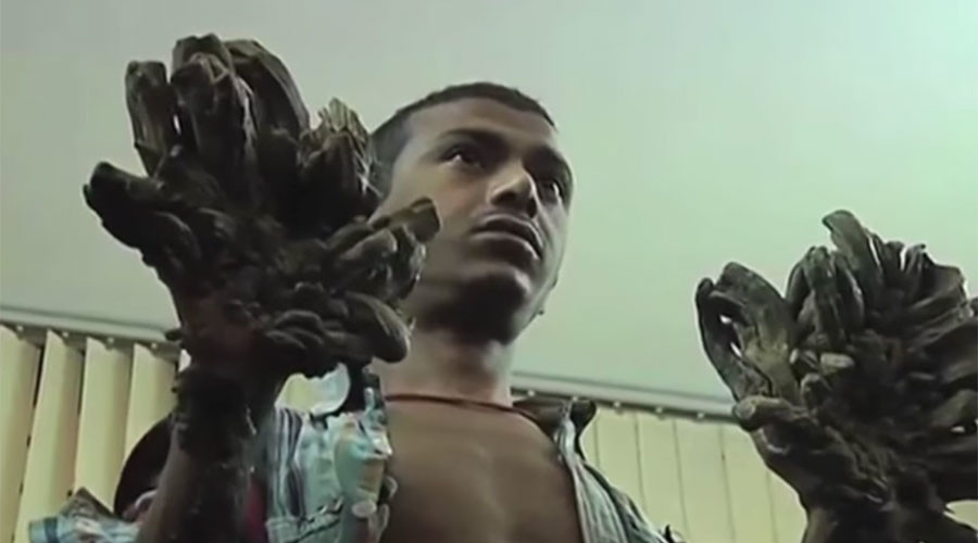 'Tree man' of Bangladesh 'cured' after undergoing 16 surgeries (PHOTOS)
