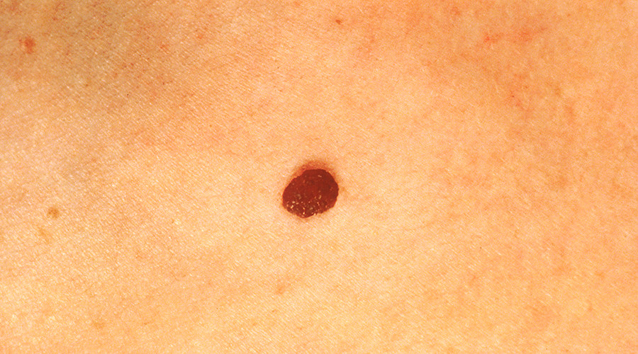 'Eureka moment': AI software programmed to spot skin cancer by checking pics of moles