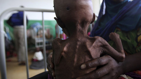 An internally displaced woman holds her malnourished child inside a paediatric ward at the Banadir hosptial in Somalia's capital Mogadishu. File photo. © Ismail Taxta