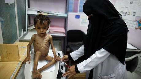 UN: Yemen could face famine in 2017, over 2/3 of population in urgent need of aid