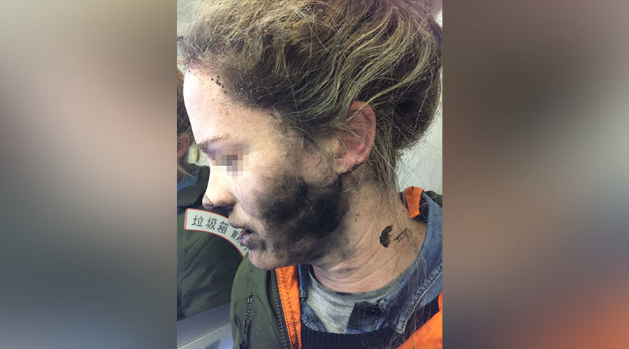 Mid-flight explosion of headphone battery leaves woman with facial burns (PHOTOS)