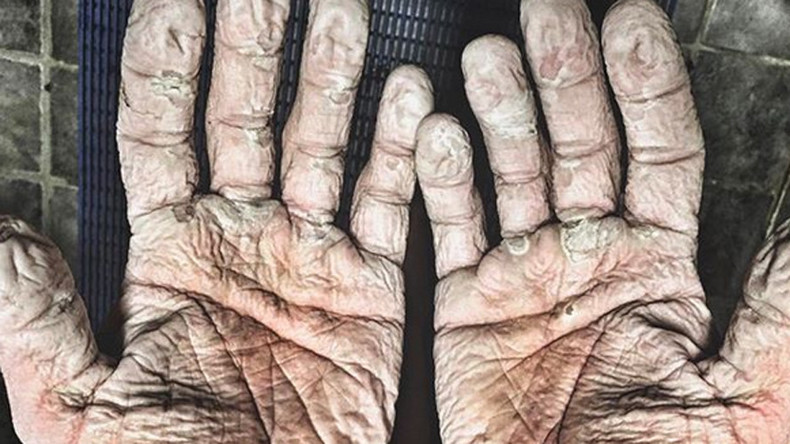 Olympic rower posts gruesome pic of blistered hands after record-breaking Arctic expedition