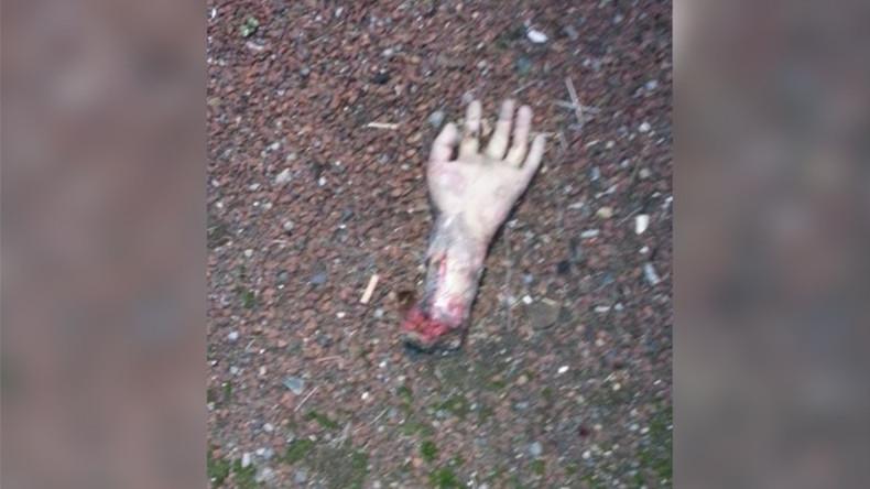 'A terror-wrist!' Sightings of 'severed hand' shut major UK road