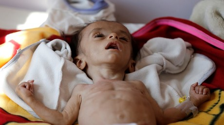 UK 'complicit in promoting famine' in war-torn Yemen