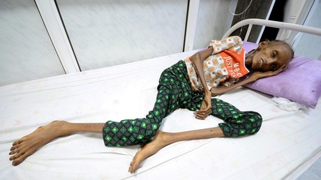 Saida Ahmed Baghili, 18, lies on a bed at the al-Thawra hospital where she receives treatment for severe malnutrition in the Red Sea port city of Hodeidah, Yemen © Reuters/ ABDULJABBAR ZEYAD