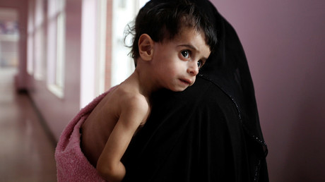 FILE PHOTO A woman holds her malnourished boy after he was weighed at a hospital malnutrition intensive care unit in Sanaa, Yemen © Khaled Abdullah