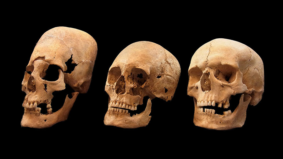Medieval woman gave birth in her grave after ancient 'neurosurgery', scientists discover