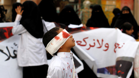 A boy wears a blindfold stained with fake blood as he takes part in an anti-Saudi protest in Sanaa, Yemen November 27, 2016 © Mohamed al-Sayaghi