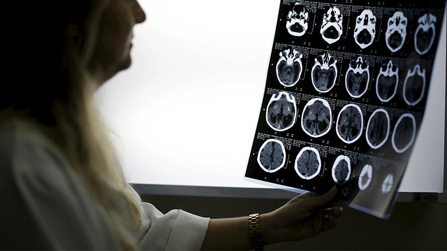 Woman's brain leaked fluid for years after 'allergy' misdiagnosis (PHOTOS)