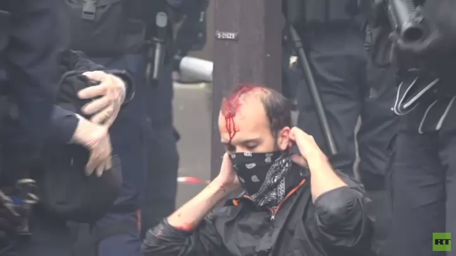 Bloodied protester on Paris street: Anti-Macron protest turns violent (VIDEOS)