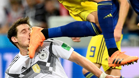 Rudy injury doubt for Germany in key South Korea clash after suffering broken nose against Sweden