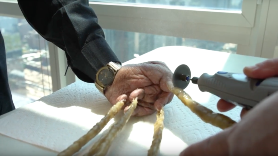 Indian man with world's longest fingernails has them clipped & put on display in New York (VIDEO)