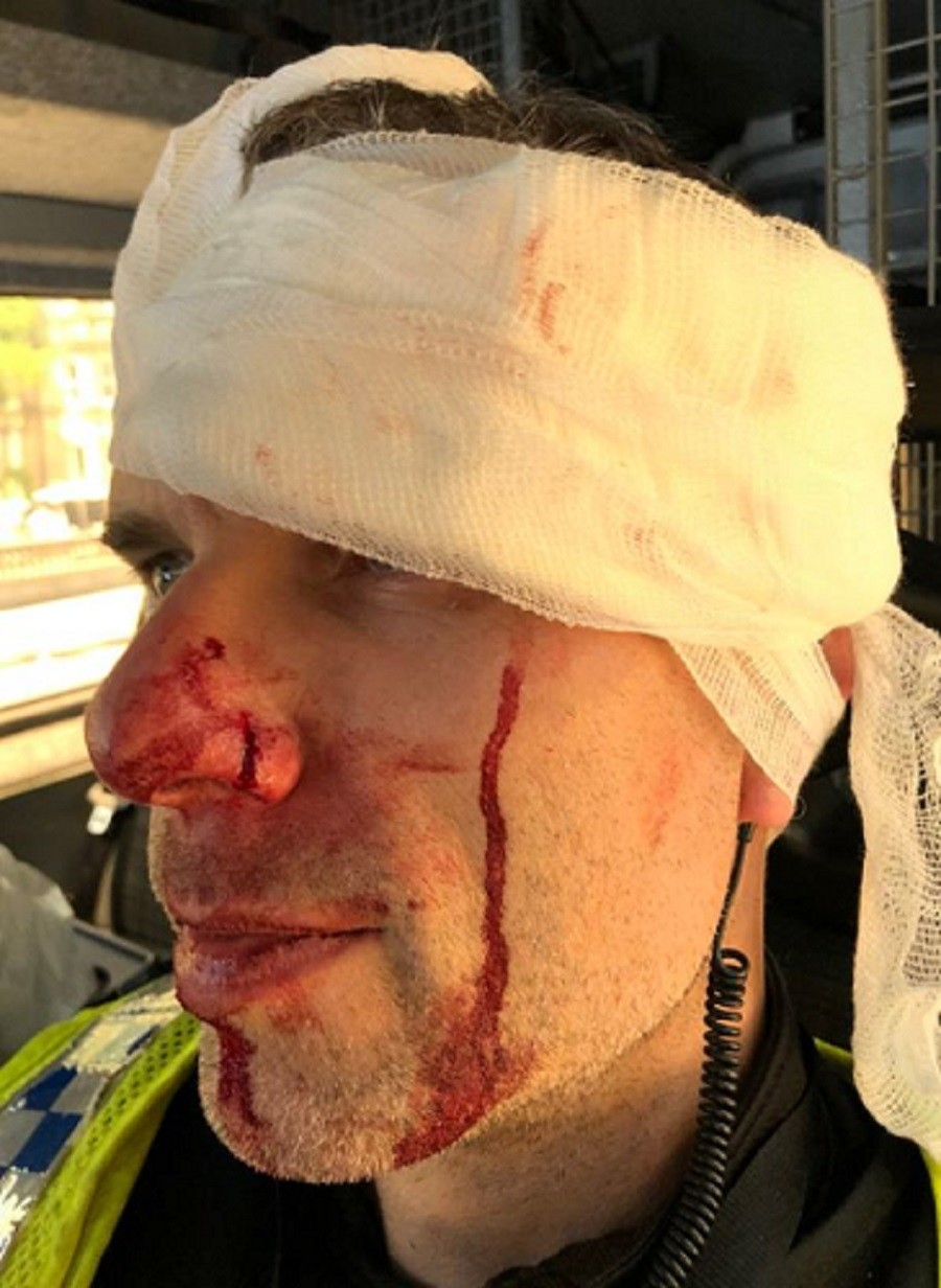 Officer hospitalized as Tommy Robinson supporters face-off with anti-fascists (PHOTOS)