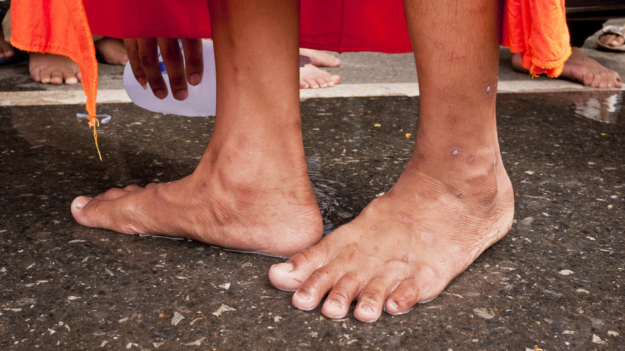 Like Indian Mp Under Fire After Worker Washes His Feet And Drinks