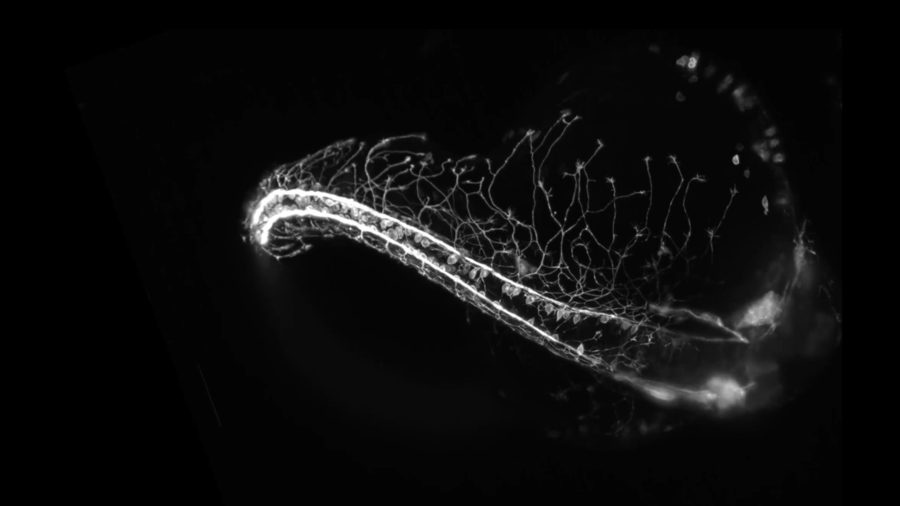 Nervous system captured growing in incredible timelapse footage (VIDEO)