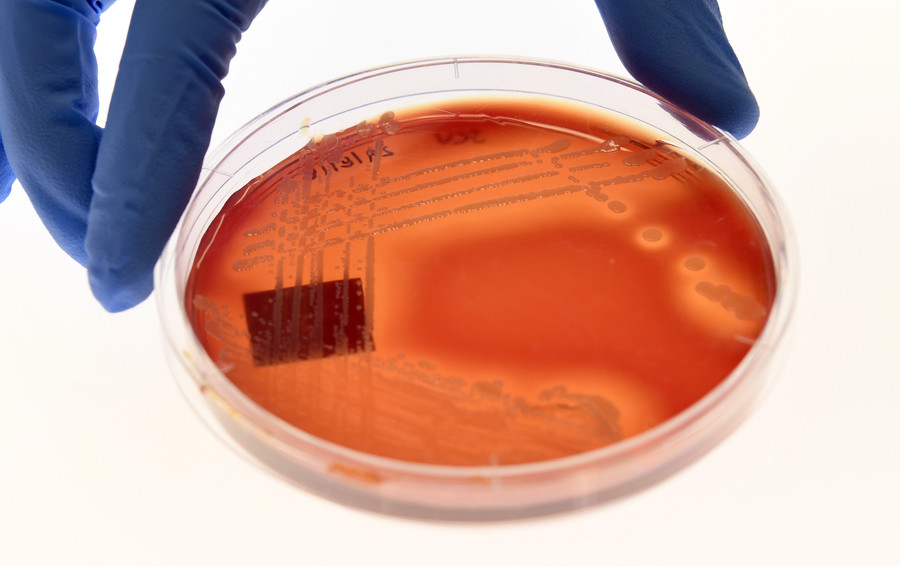 'Incurable' & drug-resistant: Deadly superbug colonizing hospitals across globe