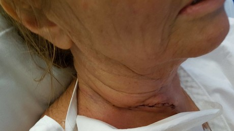 Woman lucky to survive after flying fish slits her throat (PHOTOS)