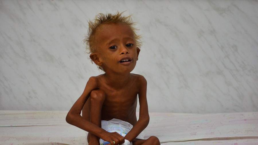 Half of Yemeni population survives on foreign aid – UN