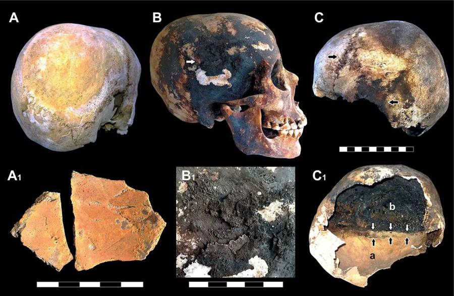 Ancient Mount Vesuvius Eruption Made Skulls Explode, Vaporized Body Fluids