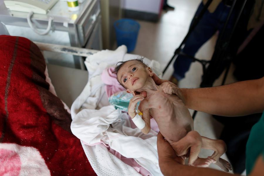 Saudi Arabia under spotlight over Khashoggi, but drastic Yemen famine ignored