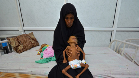 'Western-enabled Saudi behavior in Yemen would never survive due democratic scrutiny'