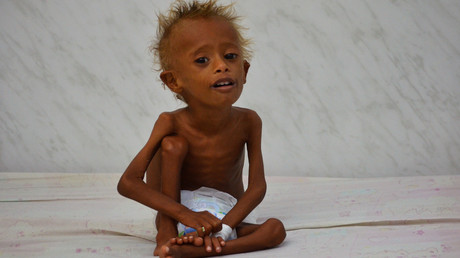 Saudi Arabia under spotlight over Khashoggi, but drastic Yemen famine ignored