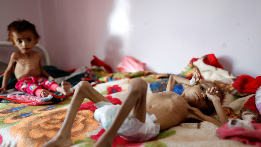 Starving Yemeni girl from shocking NYT photo dies as bombing & blockade continues
