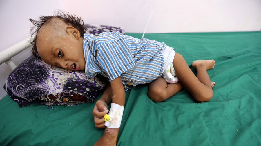 Yemen: up to 85,000 young children dead from starvation or disease