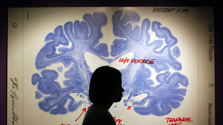 Not what you had in mind? Brain implant could help with depression, study says