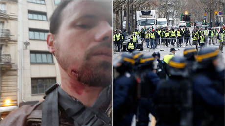 RT France reporter injured in the face as police tackle Yellow Vest protest in Paris