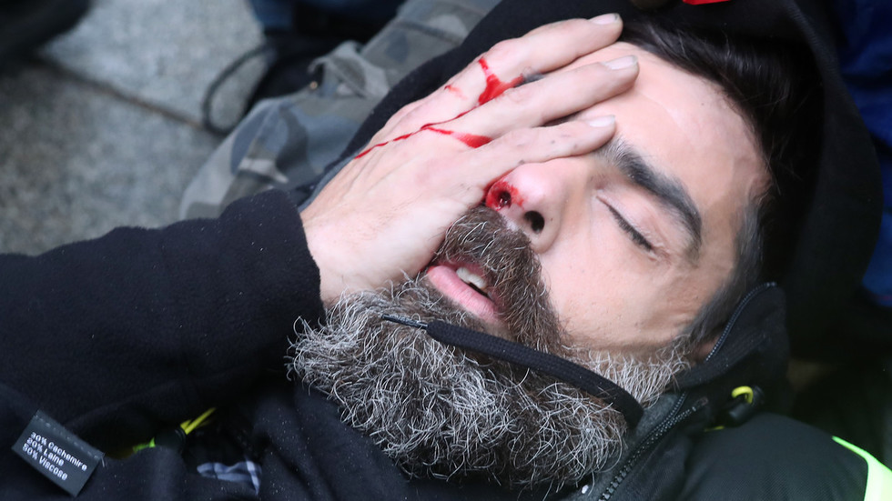 'I'll lose my eye': Prominent Yellow Vest activist suffers HORRIFIC injury in Paris protests