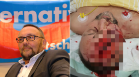 German AfD MP brutally beaten in 'politically-motivated attempted assassination' (GRAPHIC)