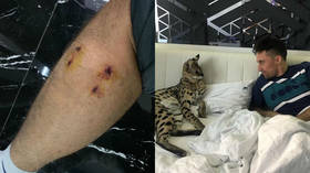 'It's not your sweet pussycat!' Ukrainian tennis star bitten by pet wild cat (PHOTOS)