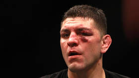 'Last time I checked he's retired': Nick Diaz's fight career is over, says teammate