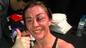 'You can beat your dreams if you don't stop': UFC fighter defies grisly facial injury to seal win