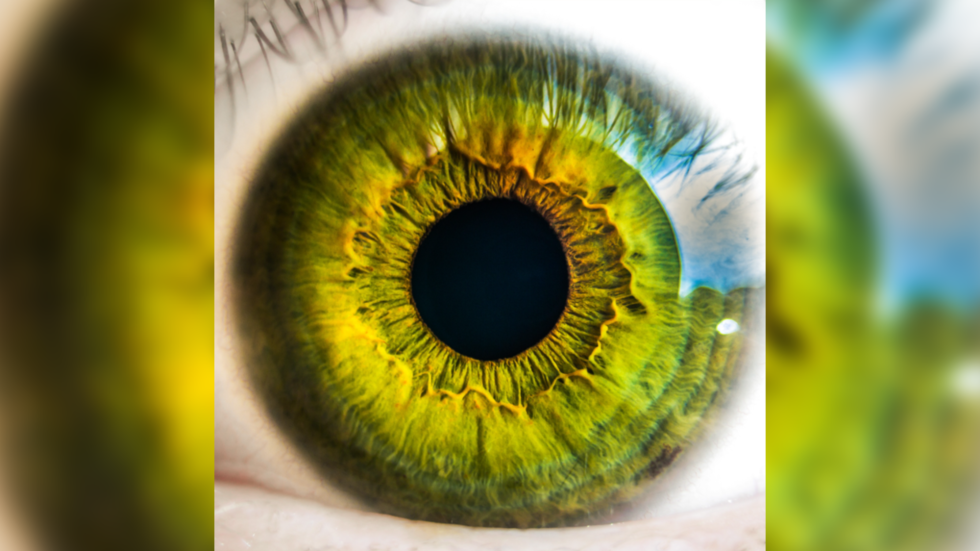 Ocular rift: GRAPHIC PHOTO shows what happens when your iris peels off