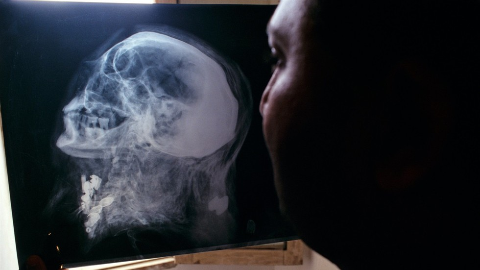 Indian man miraculously survives after metal rod pierces right through skull (GRAPHIC PHOTOS)