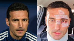 'A couple of points and home!' Argentina boss Scaloni posts picture of scars after being hit by car