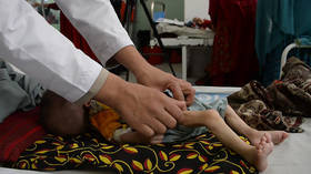 600,000 Afghan children at risk of dying from malnutrition as international aid dries up
