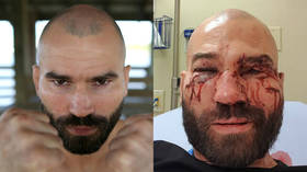 From 18th century to this day: Understanding the brutal world of bareknuckle boxing