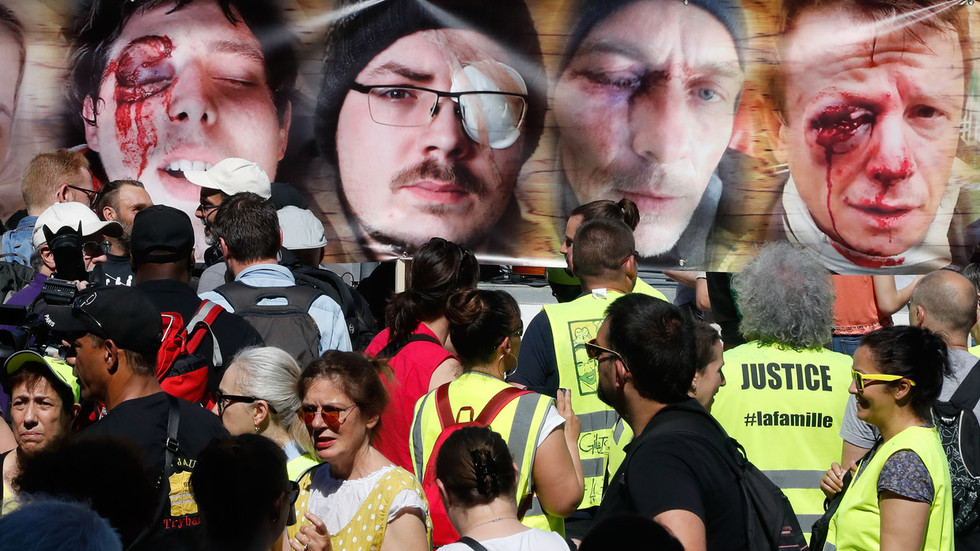 March of the mutilated: Injured Yellow Vests protest police brutality in Paris