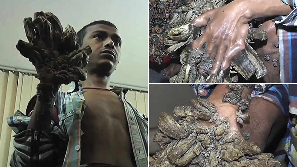 Bangladesh 'Tree Man' begs for hands to be CUT OFF after undergoing 25 surgeries