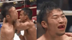 Dental damage: Watch as fighter knocks out FRONT TEETH of rival with brutal elbow (GRAPHIC)