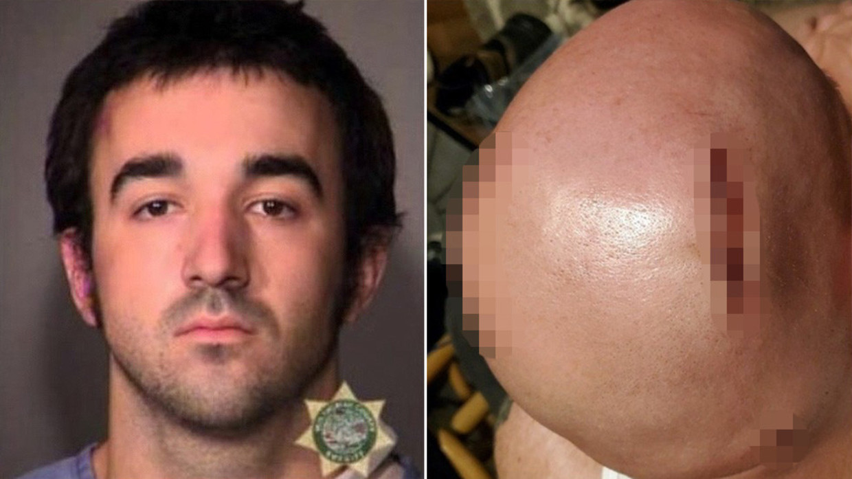 Gage Halupowski. Portland police booking photo / Adam Kelly's injuries. GoFundMe page