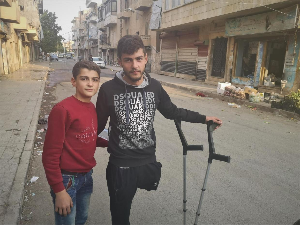 Hamoud is 19-years-old, his leg was blown off by a terrorist mortar three years ago, in Khalidiyah, Aleppo ©  Vanessa Beeley