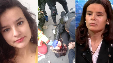 Photos show protester Fiorina Jacob Lignier before and after she was struck by a police gas grenade. ©  (L) Facebook / Fiorina Jacob Lignier; (C) Jacob Maxime; (R) YouTube / TVL