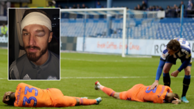 'Your head's made of concrete!': Footballer shows off horror hematoma after clashing with teammate