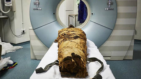 The mummified body of an Egyptian priest, Nesyamun, is prepared for a CT scan at Leeds General Infirmary as part of a project to replicate his vocal tract. ©  Scientific Reports / Leeds Teaching Hospitals / Leeds Museums and Galleries
