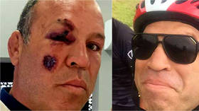 'I could have DIED': Bike-loving former MMA champ Wanderlei Silva survives AGAIN after being hospitalized by car crash in Brazil
