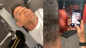 'I ripped half his ear off': UFC champion Jon Jones disfigures Jackass star Steve-O in DISTURBING VIDEO as stunt goes badly wrong